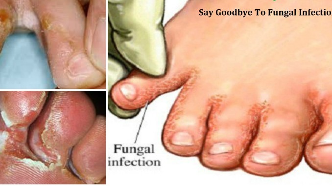 Are Fungal Infections Pestering Your Kids?
